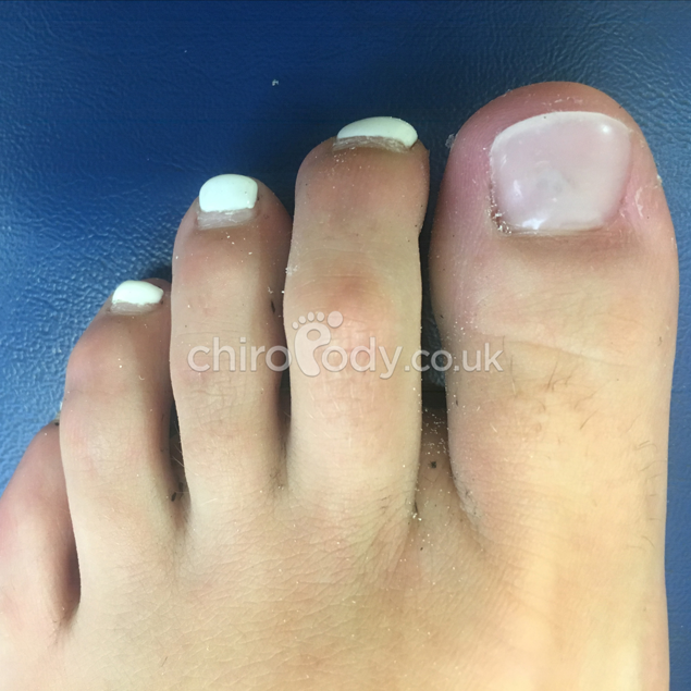 Toenail reconstruction | Services | Manchester Podiatry